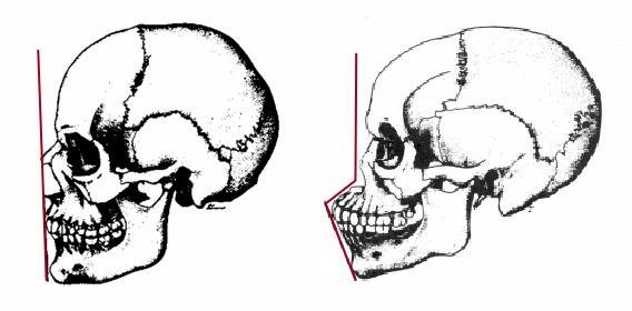 Ortognatismo-Prognatismo